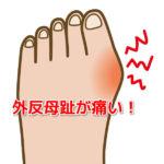 外反母趾が痛い!本当の原因を知り簡単に外反母趾を改善する「5つの方法」